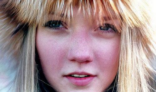 Почему краснеет лицо
