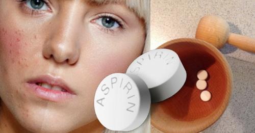 Маска с аспирином от прыщей