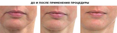 Фото до и после lpg массажа лица