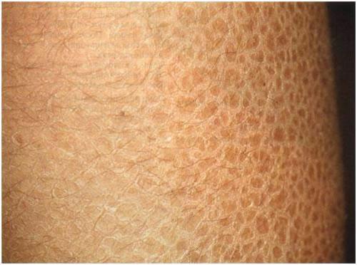 Что делать если кожа истончилась
