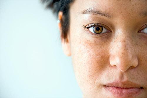 Эффективные крема от пигментных пятен на лице