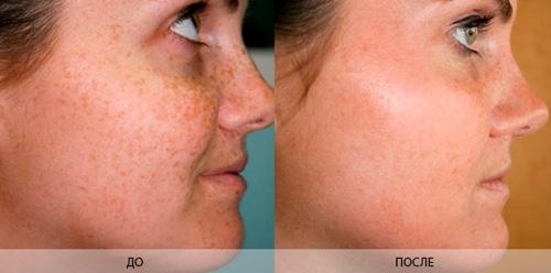 До и после лечения хлоазм