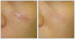 Крем от рубцов и шрамов на лице — эффективное решение проблемы
