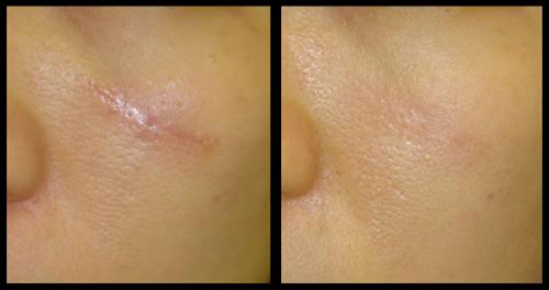 Хороший крем от шрамов на лице