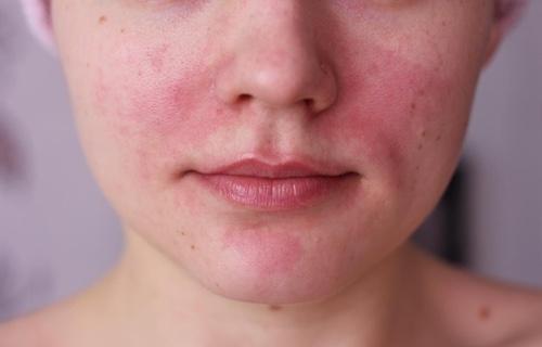 Раздражение на коже лица