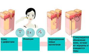 Выбор между мезотерапией и плазмолифтингом: плюсы и минусы процедур