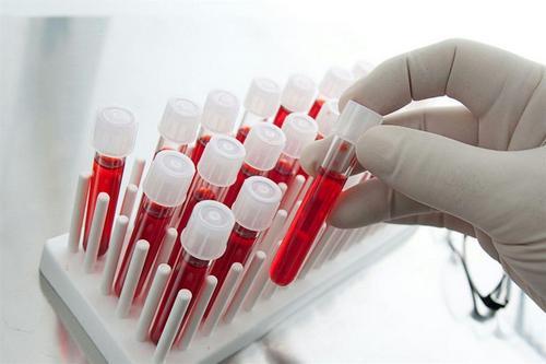 Анализ крови при пиодермии