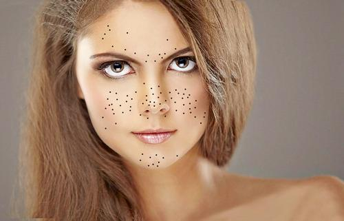 Причины черных точек на лице