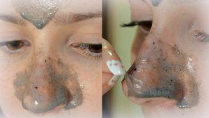 Маски для лица от чёрных точек: магазинные и домашние средства для эффективного очищения