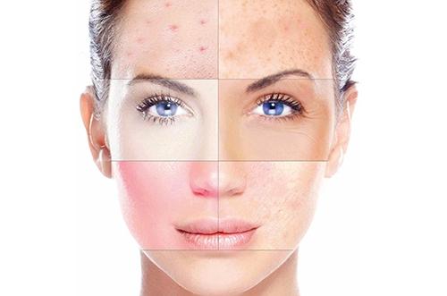 Косметика для комбинированной кожи лица