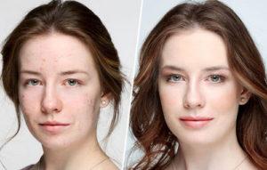 Макияж для жирной кожи лица может быть идеальным: как избежать типичных ошибок при его нанесении
