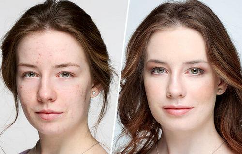 Фото до и после макияжа для жирной кожи