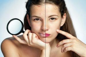Как сделать макияж для проблемной кожи, чтобы не навредить ей: маленькие секреты умелого визажа