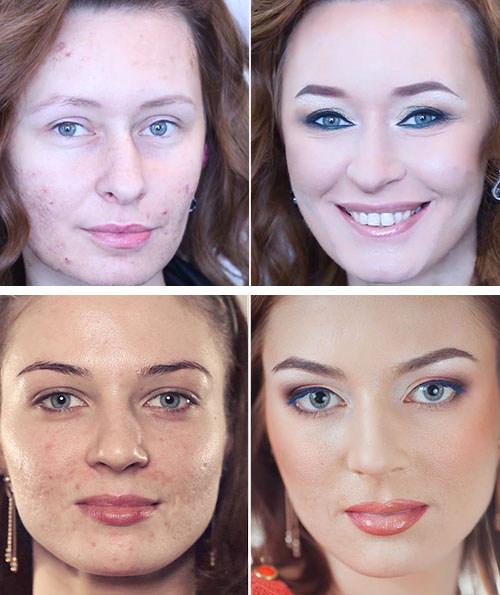 Фото до и после макияжа для проблемной кожи
