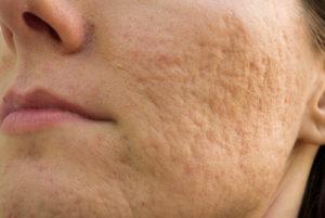 Лечение постакне на лице с помощью медикаментозных препаратов и салонных процедур