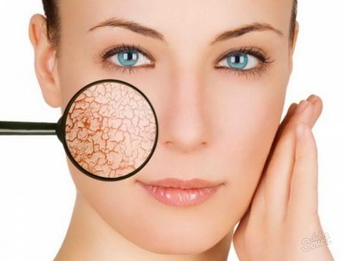 Уход за сухой кожей лица: лучшие домашние рецепты