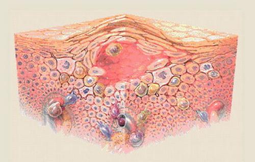 Экзема на лице: причины, симптомы и лечение в домашних условиях