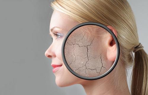 Маска от шелушения кожи лица в домашних условиях: лучшие рецепты