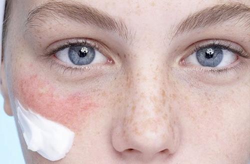Дерматоз на лице: что это такое, симптомы, классификация, лечение