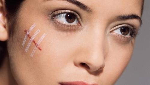 Крем от рубцов и шрамов на лице