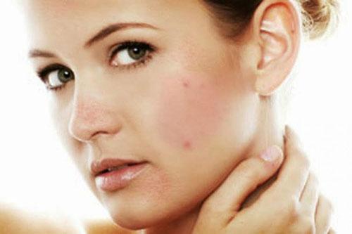 Комедоны на лице (закрытые, открытые): причины возникновения, лечение, удаление