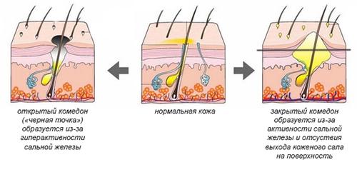 Как избавиться от комедонов на лице