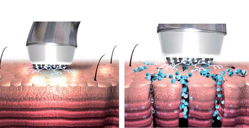Безинъекционная (аппаратная) мезотерапия лица – виды, противопоказания, эффект