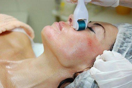 Фракционная мезотерапия кожи лица: особенности процедуры и её эффективность