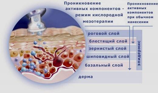 Кислородная мезотерапия лица: эффективность, показания, последствия