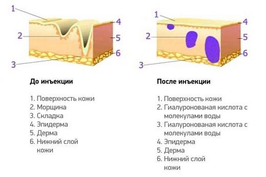 Мезотерапия гиалуроновой кислотой: особенности, противопоказания, препараты