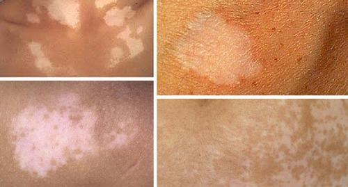 Витилиго на лице: как лечить, причины и симптомы болезни