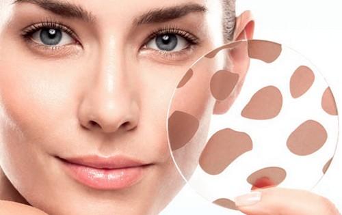 Косметика от пигментных пятен на лице: эффективность, рейтинг, линии