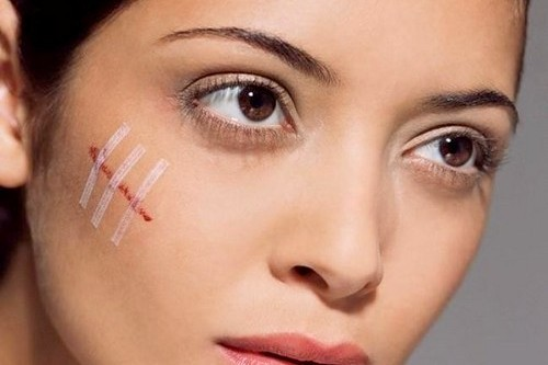 Раны на лице: быстрое заживление и лечение, правила ухода