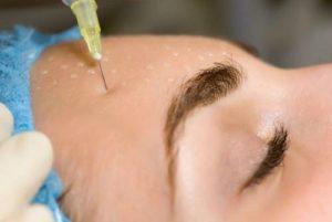 Современные методы омоложения лица после 50 лет: аппаратные, уколы красоты, домашние процедуры
