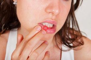 Прыщ на губе — безобидное образование или тревожный сигнал?