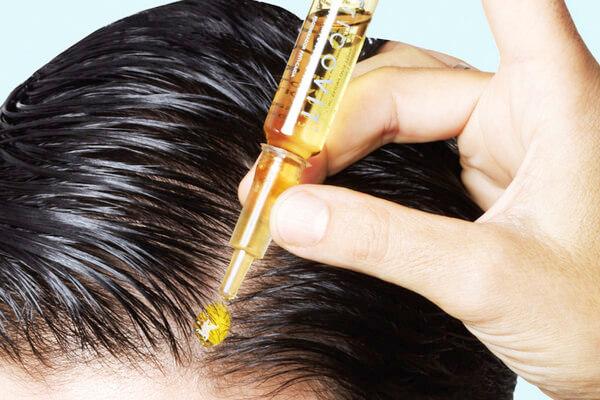 Причины выпадения волос у женщин - внутренние и внешние