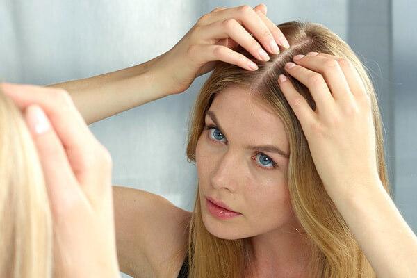 Alopecia areata forum uk