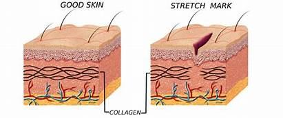 растяжки на коже